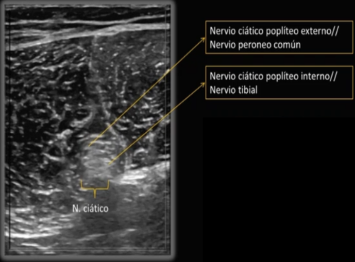 neurodinamia-ecografia-con-ana-de-groot