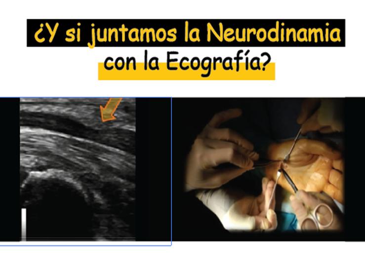 neurodinamia-sindrome-tunel-del-carpo